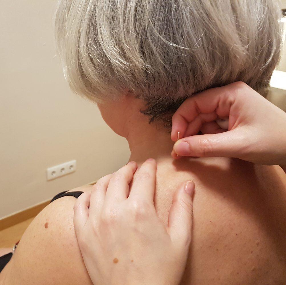 Tratamiento de acupuntura para la espalda